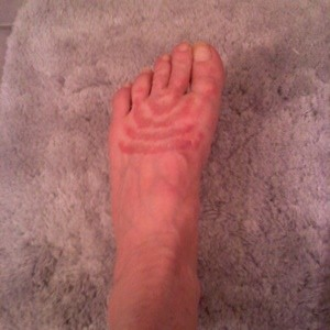 tops of feet itch