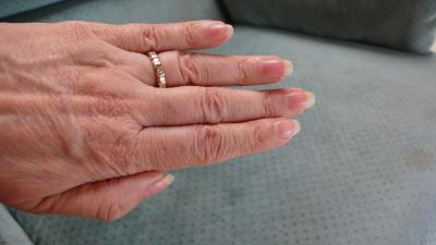 RE: White Iodine for Weak Fingernails
