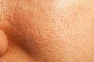 Closeup of Facial Pores and Oily Skin