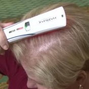 Hair Loss Treatments, Woman Using Hairmax treatment