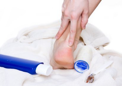 Home Remedies for Foot Calluses | ThriftyFun