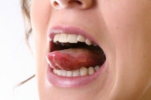 Pimple tongue remedy