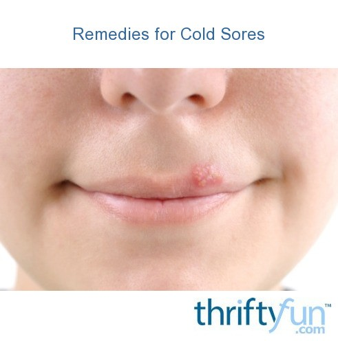 Remedies For Cold Sores Thriftyfun