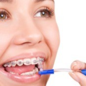 Wearing Braces Tips