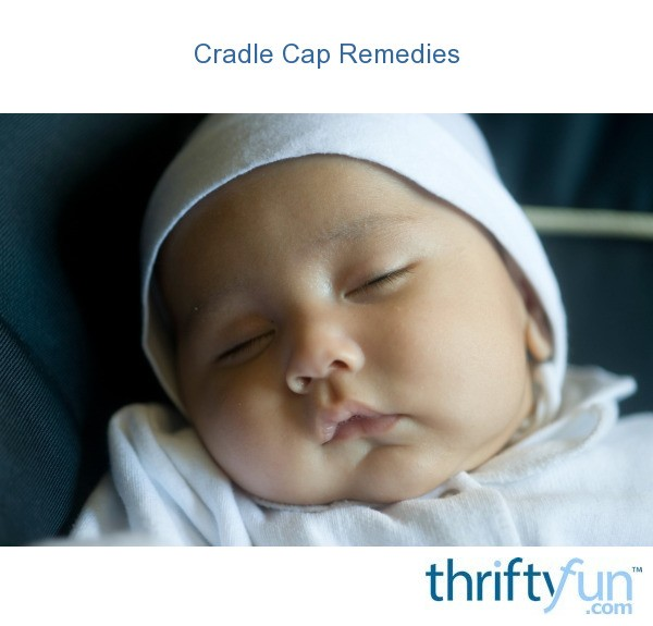 how to get rid of cradle cap with baby oil