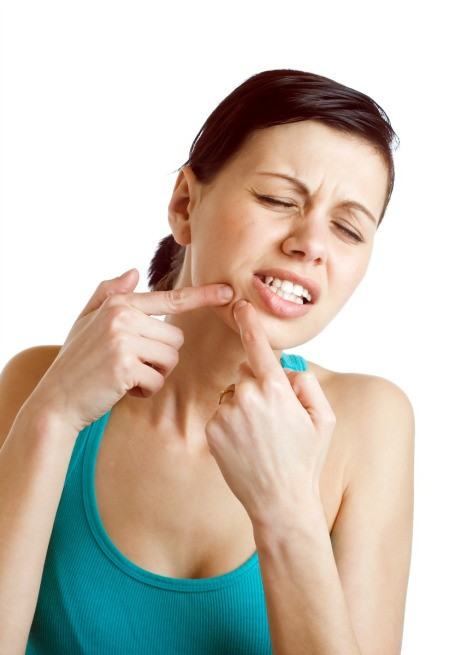 A girl popping a pimple.