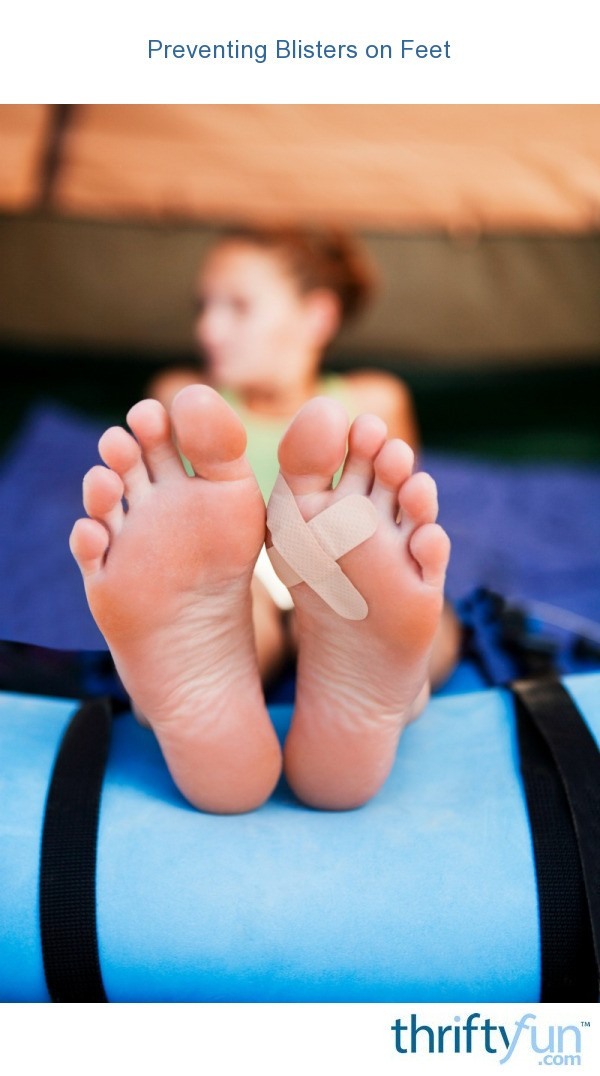 preventing blisters on feet thriftyfun