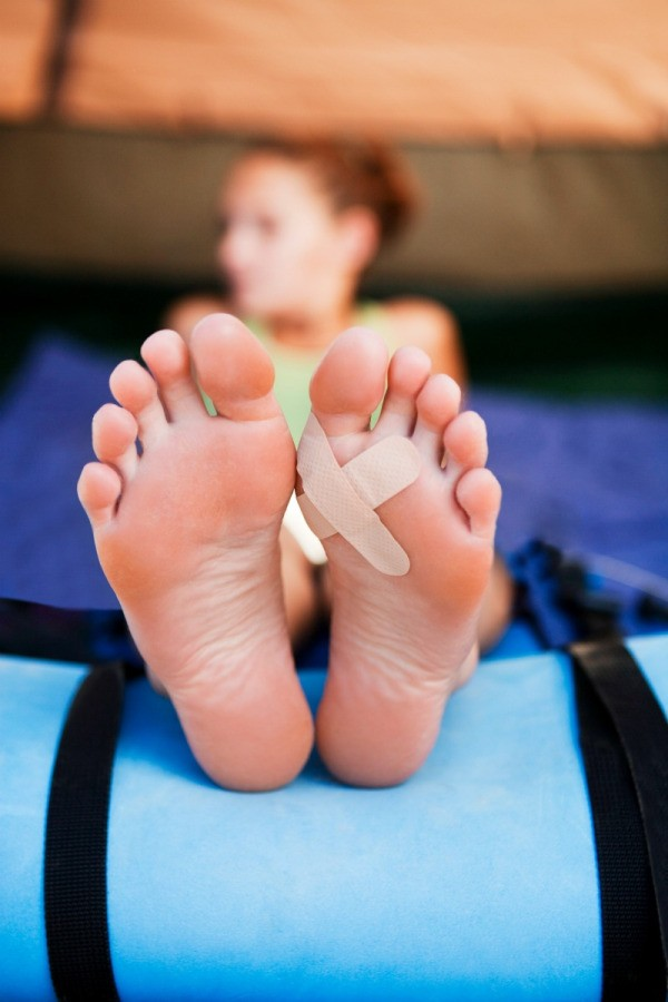 Woman with a blister on the bottom of her feet.