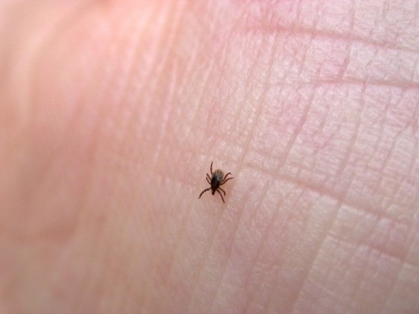 Information About Lyme Disease Thriftyfun