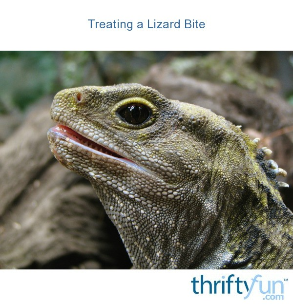 Treating a Lizard Bite | ThriftyFun