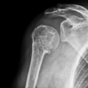 Dealing with A Broken Shoulder