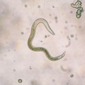 Image of a nematode shown under microscope