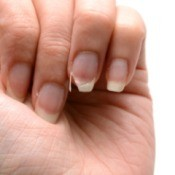 Close up of woman's hand with broken nail
