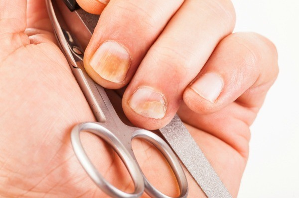 Remedies for Yellow Fingernails