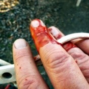 Wear Gardening Gloves For The Unexpected - cut finger