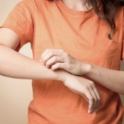 A woman with an itchy spot on her arm.