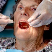 A woman receiving dental care.