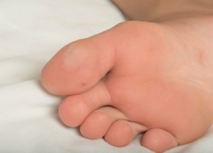 A blister on the big toe of someones foot.