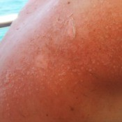 Extremely dry sunburned skin.