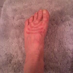 Treating a Rash on Feet | ThriftyFun