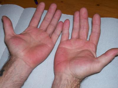 RE: Excessive Sweating - Red Hands