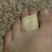 Foot with two toes taped together
