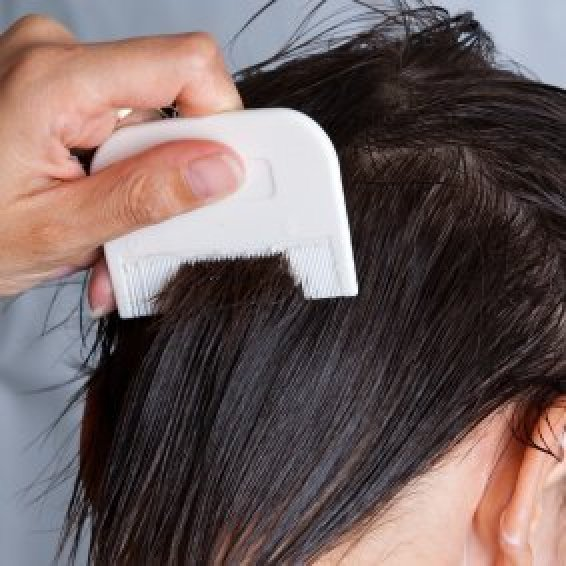 Getting Rid Of Head Lice