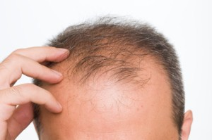 Remedies For Hair Loss, Man Touching His Balding Head