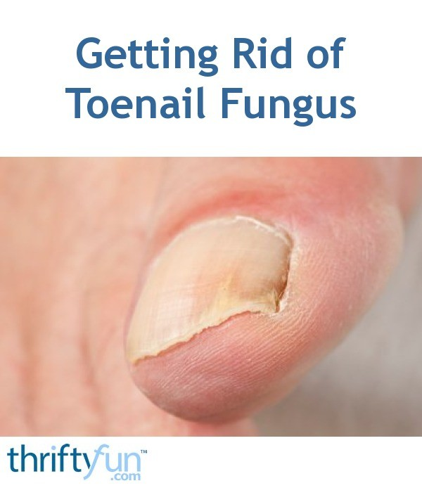 Getting Rid of Toenail Fungus | ThriftyFun