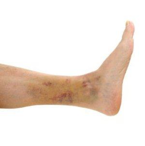 Remedies for Bruises, Bruised Ankle