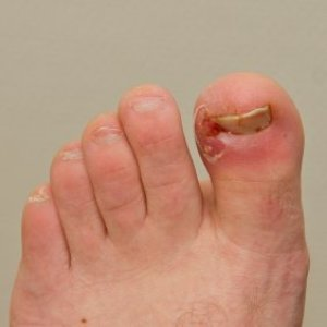 A foot with an ingrown toenail.