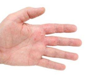 Hand with eczema rash