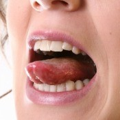 A woman with a pimple on her tongue.