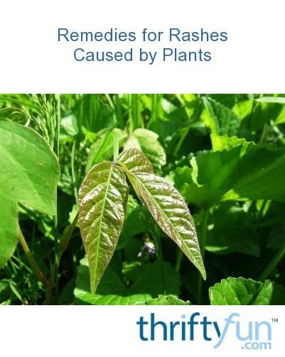 Oleander rash treatment