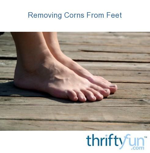 removing corns from feet thriftyfun