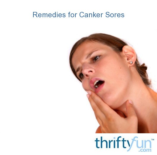 Remedies for Canker Sores | ThriftyFun