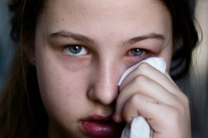 Girl with Pink Eye (Conjunctivitis)