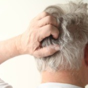 itchy scalp
