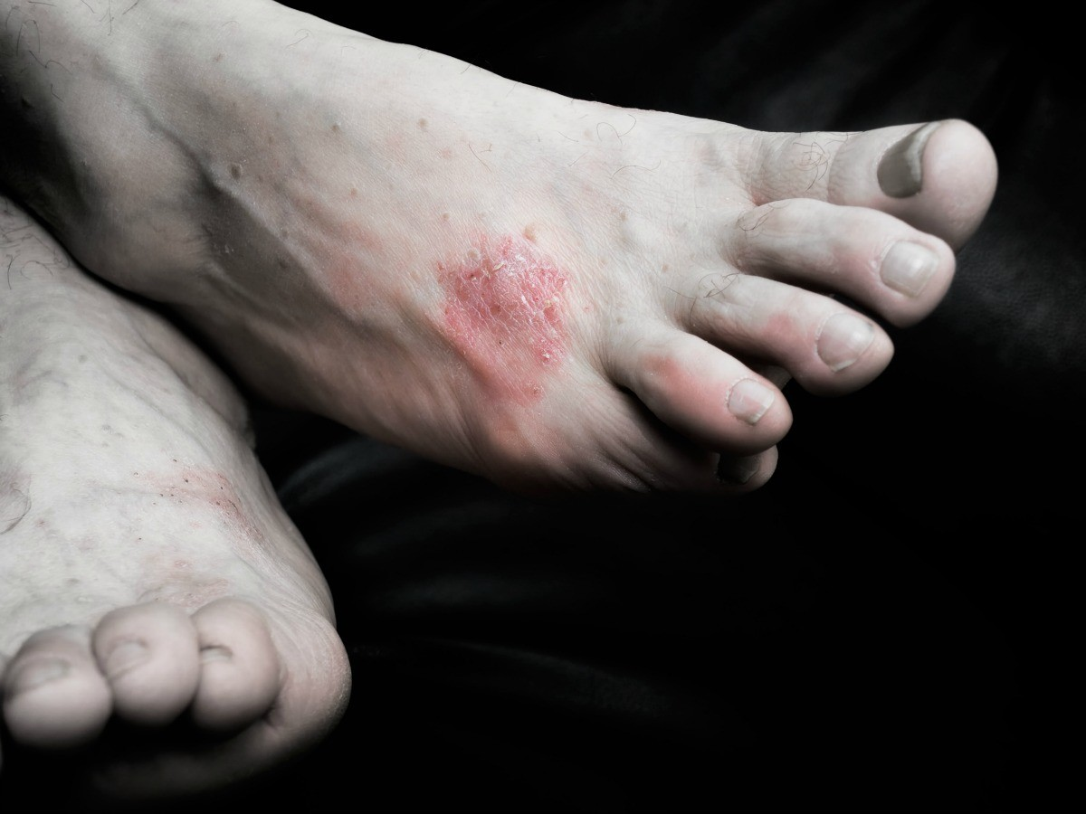 Image result for rash on foot""