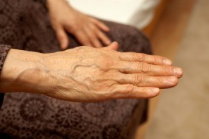A woman's hand experiencing tremors.