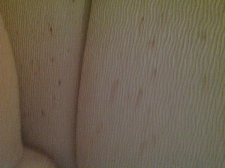 Brownish spots on upholstery.