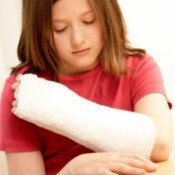 A girl with a broken arm.