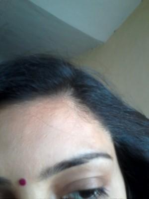 Damaged hair.