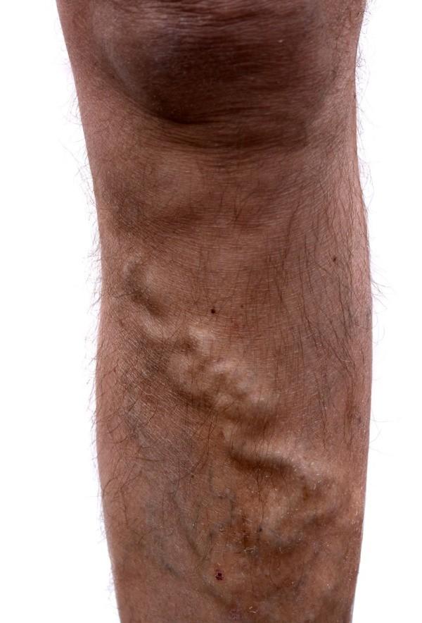 Kompressziós harisnya visszerek férfiak számára - A kompressziós harisnya férfi szvitotex