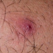 A blister on a leg