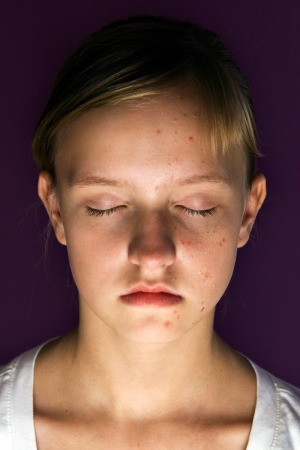 young girl with facial blemishes, eyes closed