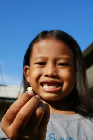 Girl Holding her Lost Tooth