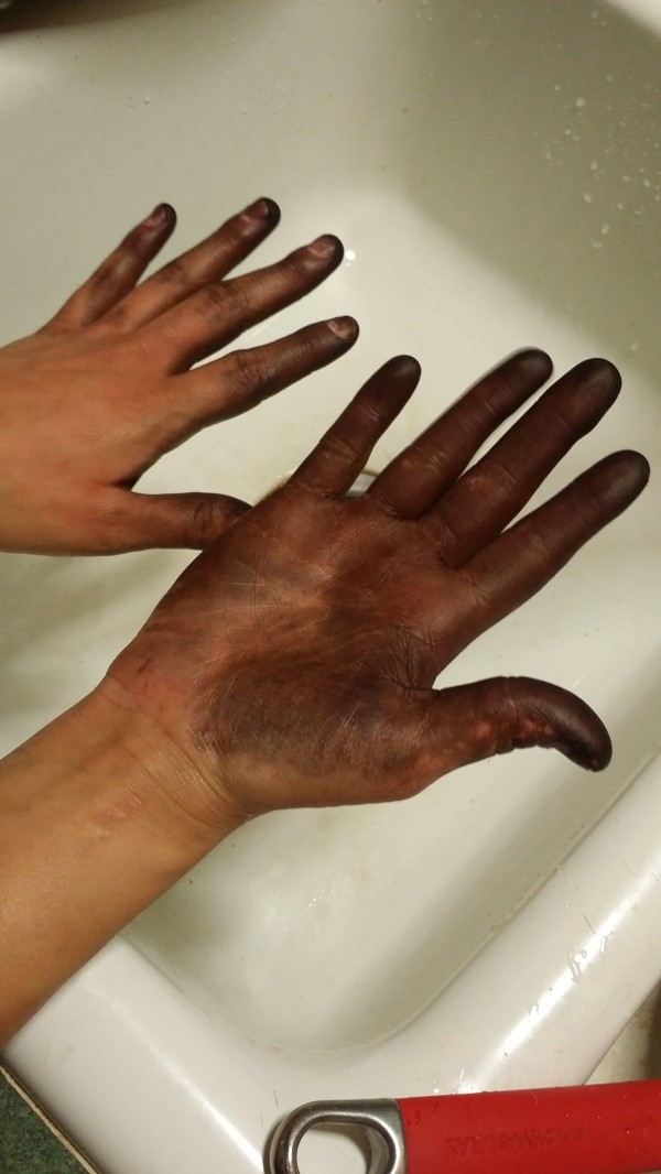 How To Remove Hair Dye At Hands