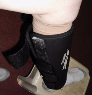 Preventing Leg Ulcers with Shin Guards