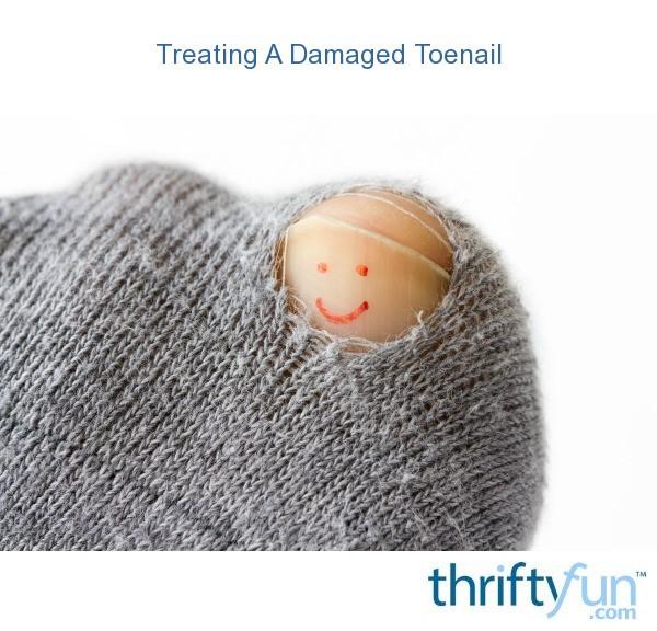 Treating A Damaged Toenail | ThriftyFun